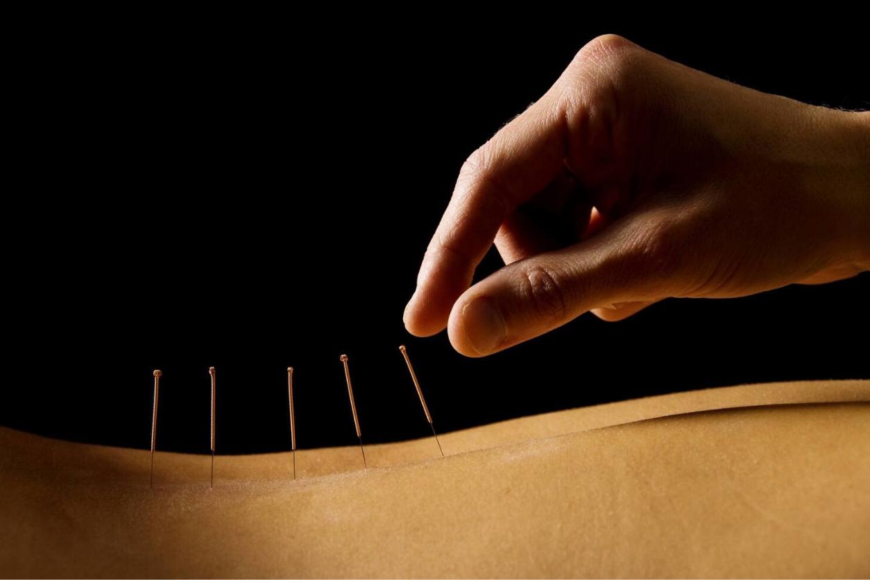 Spine Wellness Center Dry Needling